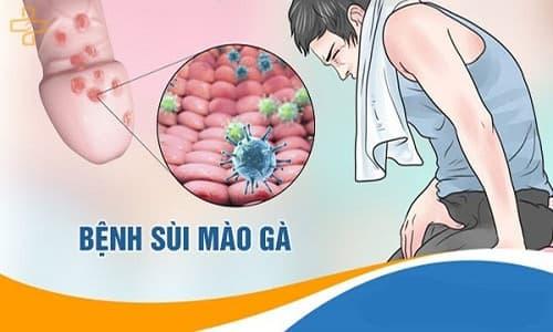 http://wikisuckhoe24h.com/wp-content/uploads/2019/10/benh-sui-mao-ga.jpg